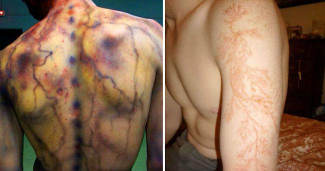 При попадании молнии кожа человека нагревается